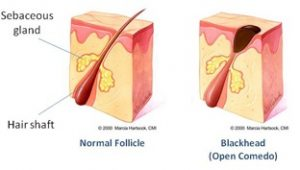 Pore/Folicle & Blackhead anatomy